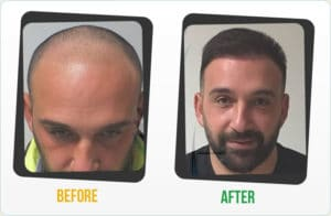 hair trasnplant before after  results